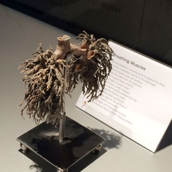 Body-Worlds-Exhibit-Lungs